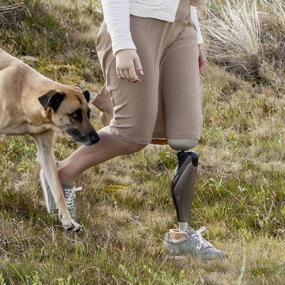 Oberschenkelprothese, Prothese fuer den Oberschenkel vom Sanitaetshaus rahm